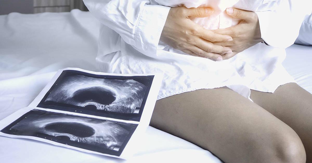 Eierstock symptome zyste am Welche Symptome